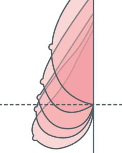 prótese-de-silicone-levantar-seios