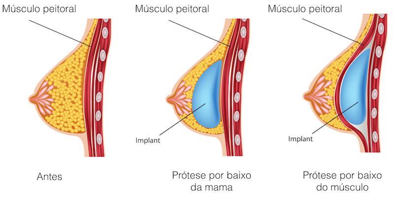 prótese de silicone músculo