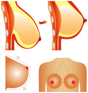 prótese-de-silicone-mastopexia