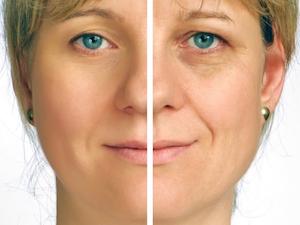 rejuvenescimento-do-rosto-antes-e-depois-cirurgia-pálpebras